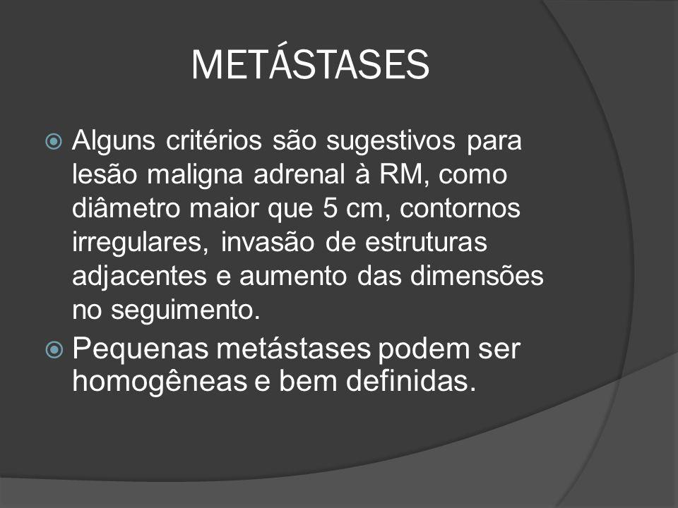 METÁSTASES Alguns critérios são sugestivos para lesão maligna adrenal à RM, como diâmetro maior que 5 cm, contornos irregulares, invasão de estruturas adjacentes e aumento das dimensões no seguimento.