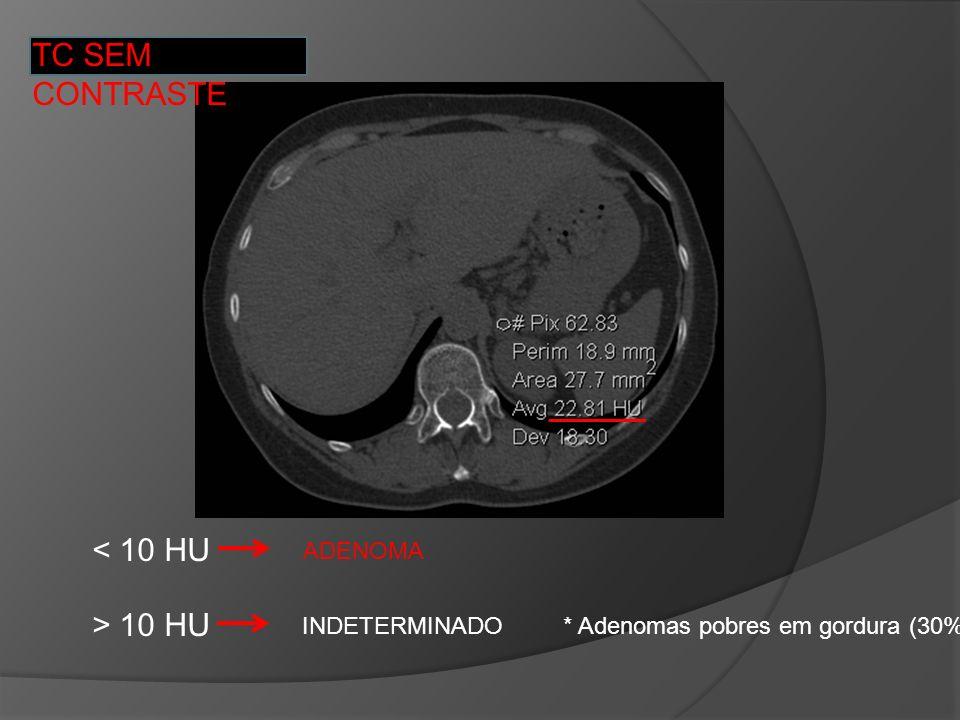 TC SEM CONTRASTE < 10 HU ADENOMA > 10 HU INDETERMINADO * Adenomas pobres em gordura (30%)