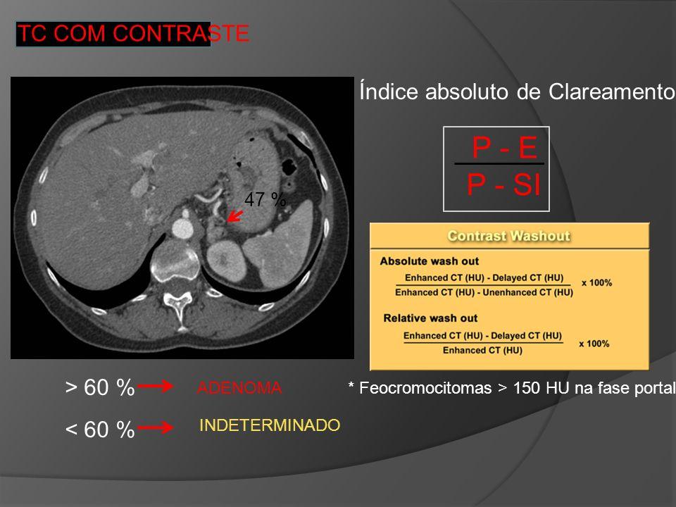 TC COM CONTRASTE Índice absoluto de Clareamento: P - E P - SI > 60 % ADENOMA < 60 % INDETERMINADO * Feocromocitomas > 150 HU na fase portal 47 %