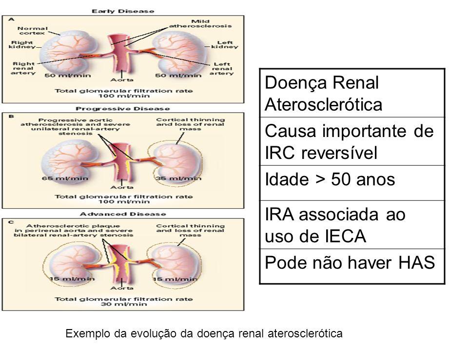 Exemplo da evolução da doença renal aterosclerótica Doença Renal Aterosclerótica Causa importante de IRC reversível Idade > 50 anos IRA associada ao u