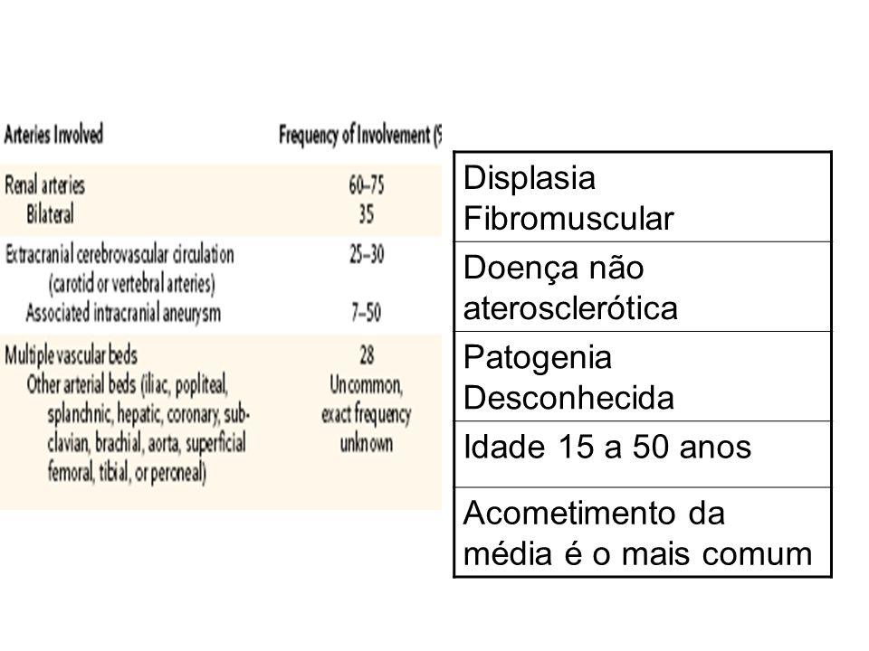 Displasia Fibromuscular Doença não aterosclerótica Patogenia Desconhecida Idade 15 a 50 anos Acometimento da média é o mais comum