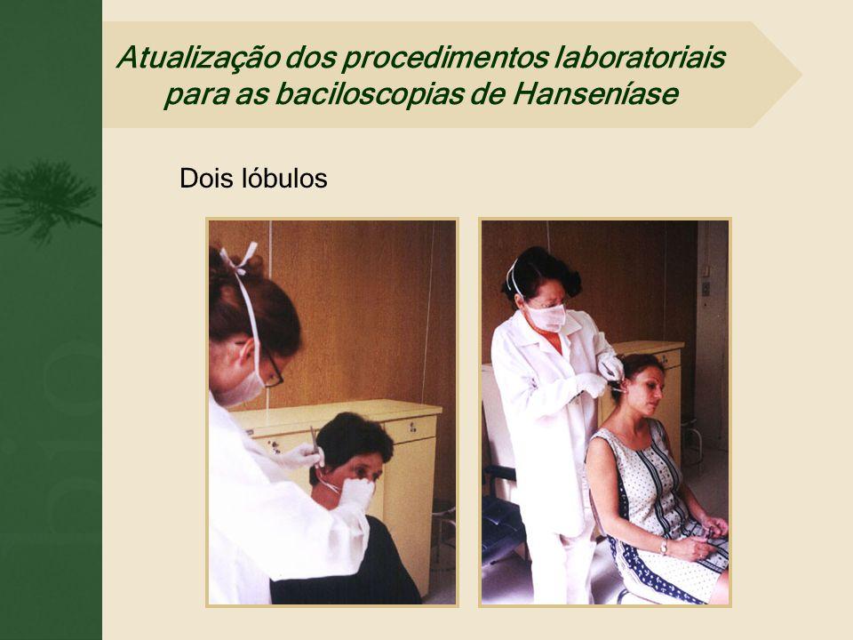 Dois lóbulos Atualização dos procedimentos laboratoriais para as baciloscopias de Hanseníase