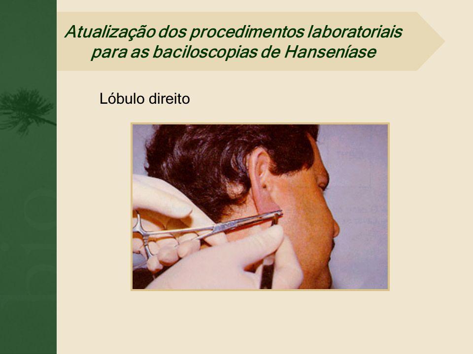 Lóbulo direito Atualização dos procedimentos laboratoriais para as baciloscopias de Hanseníase