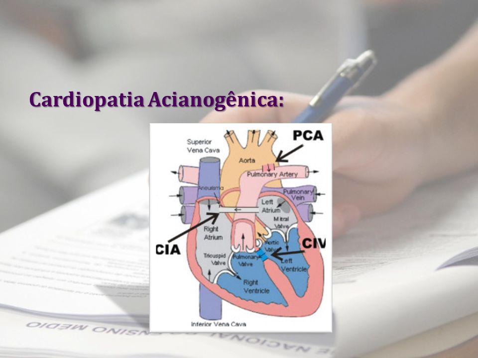 Cardiopatia Acianogênica:
