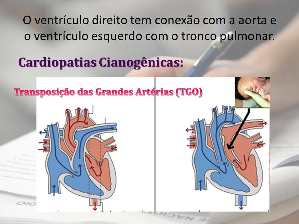 O ventrículo direito tem conexão com a aorta e o ventrículo esquerdo com o tronco pulmonar. Cardiopatias Cianogênicas: