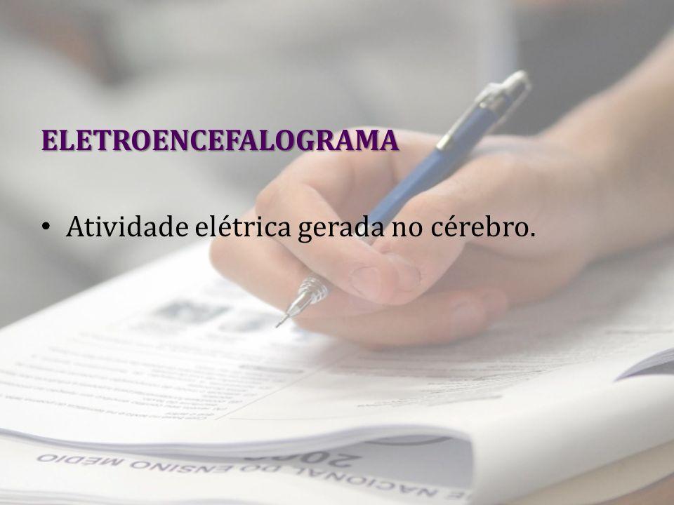 ELETROENCEFALOGRAMA Atividade elétrica gerada no cérebro.