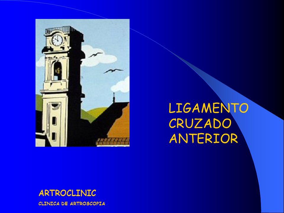 LIGAMENTO CRUZADO ANTERIOR ARTROCLINIC CLINICA DE ARTROSCOPIA