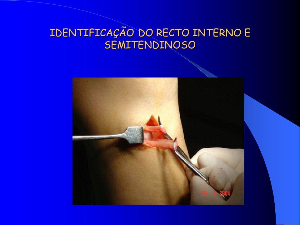 IDENTIFICAÇÃO DO RECTO INTERNO E SEMITENDINOSO