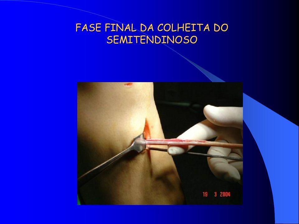 FASE FINAL DA COLHEITA DO SEMITENDINOSO