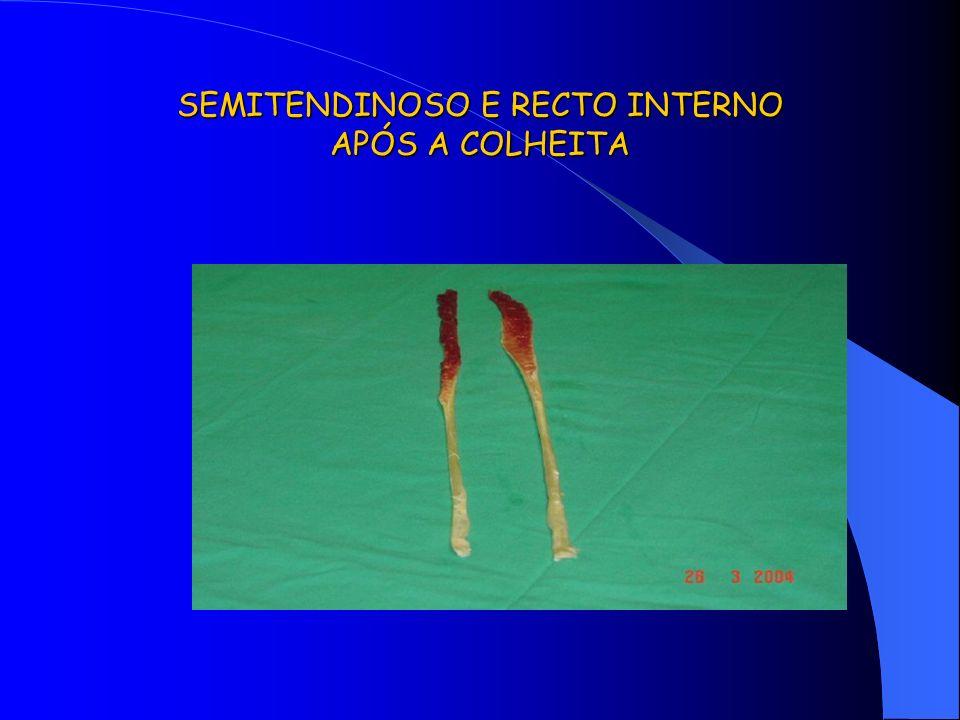 SEMITENDINOSO E RECTO INTERNO APÓS A COLHEITA
