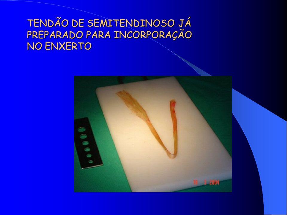 TENDÃO DE SEMITENDINOSO JÁ PREPARADO PARA INCORPORAÇÃO NO ENXERTO