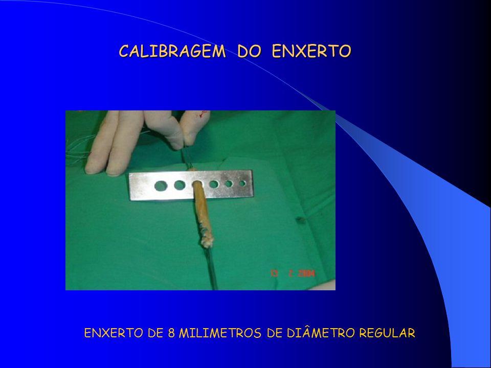 CALIBRAGEM DO ENXERTO ENXERTO DE 8 MILIMETROS DE DIÂMETRO REGULAR