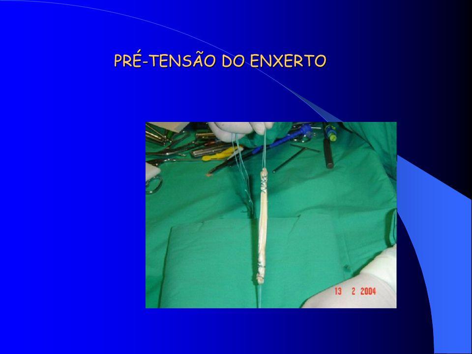 PRÉ-TENSÃO DO ENXERTO