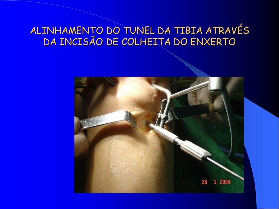 ALINHAMENTO DO TUNEL DA TIBIA ATRAVÉS DA INCISÃO DE COLHEITA DO ENXERTO