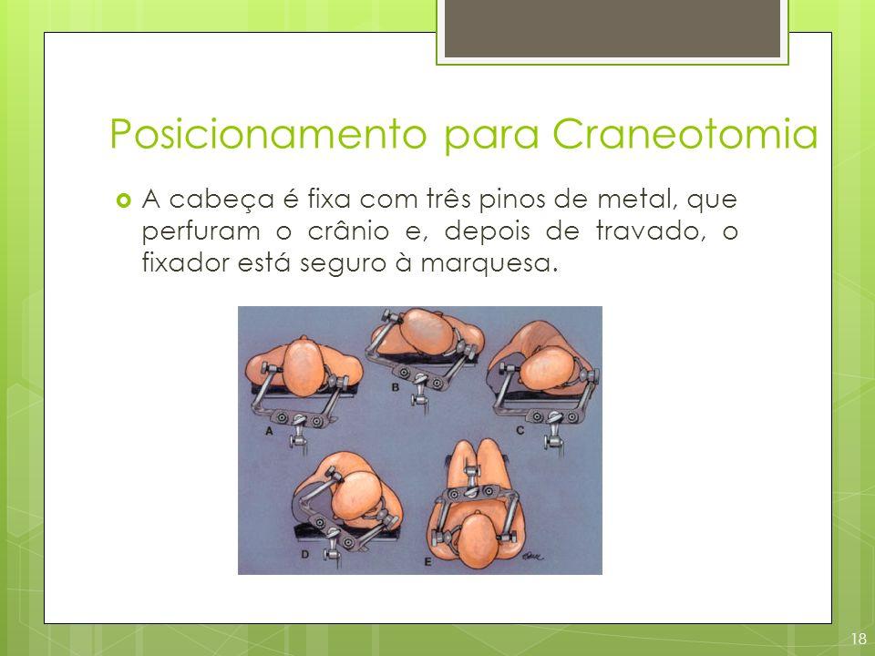Posicionamento para Craneotomia A cabeça é fixa com três pinos de metal, que perfuram o crânio e, depois de travado, o fixador está seguro à marquesa.