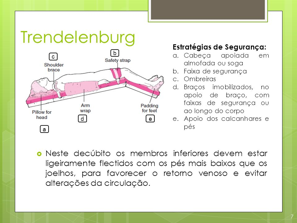 Trendelenburg 7 a e b c d Neste decúbito os membros inferiores devem estar ligeiramente flectidos com os pés mais baixos que os joelhos, para favorece