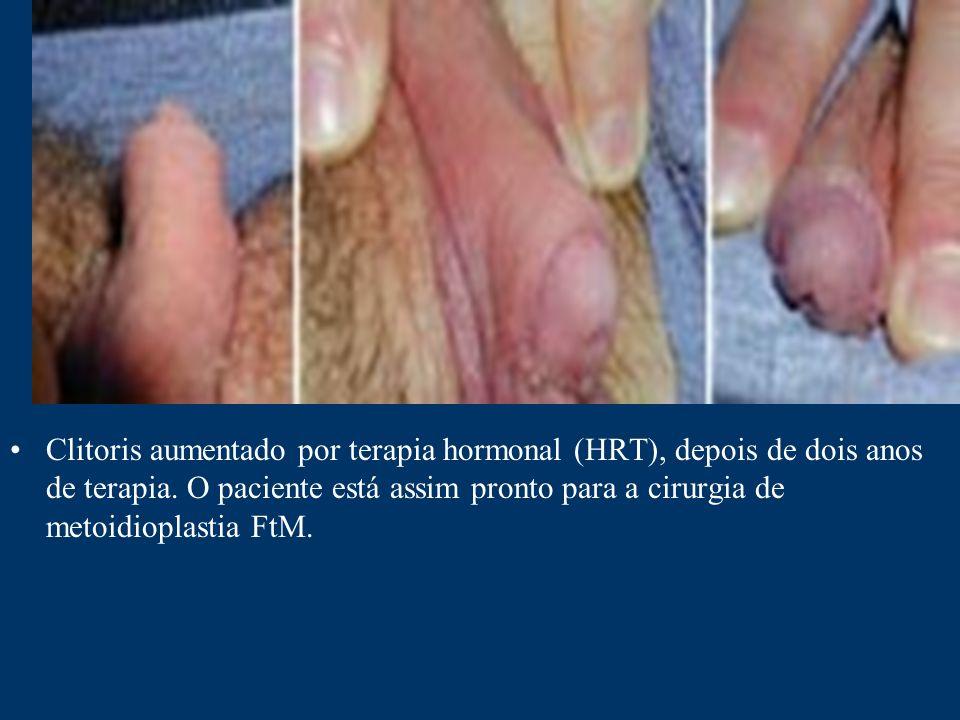 Clitoris aumentado por terapia hormonal (HRT), depois de dois anos de terapia. O paciente está assim pronto para a cirurgia de metoidioplastia FtM.