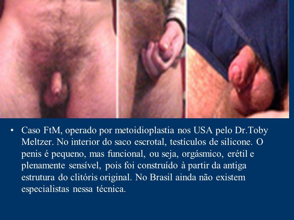 Caso FtM, operado por metoidioplastia nos USA pelo Dr.Toby Meltzer. No interior do saco escrotal, testículos de silicone. O penis é pequeno, mas funci