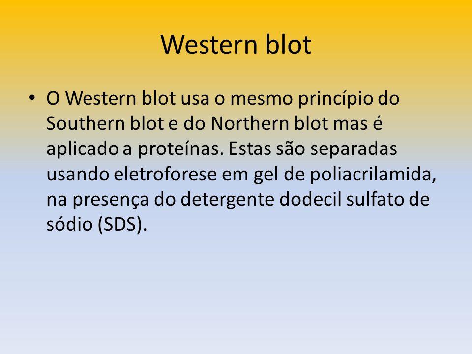 Western blot O Western blot usa o mesmo princípio do Southern blot e do Northern blot mas é aplicado a proteínas. Estas são separadas usando eletrofor