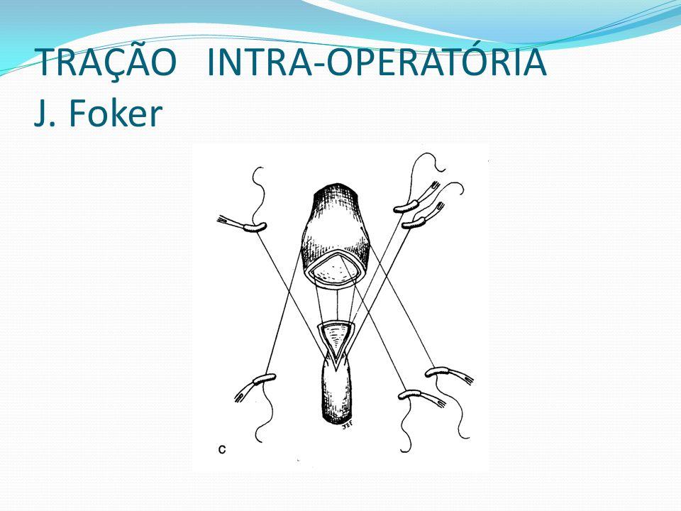 TRAÇÃO INTRA-OPERATÓRIA J. Foker