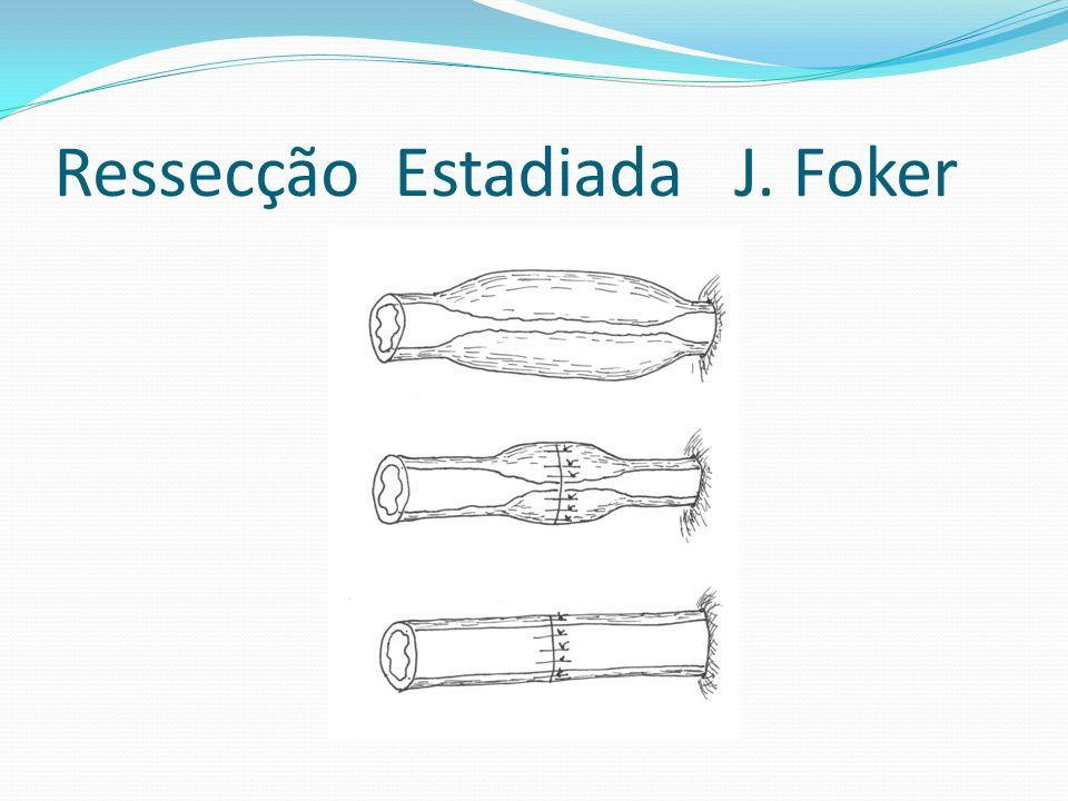 Ressecção Estadiada J. Foker