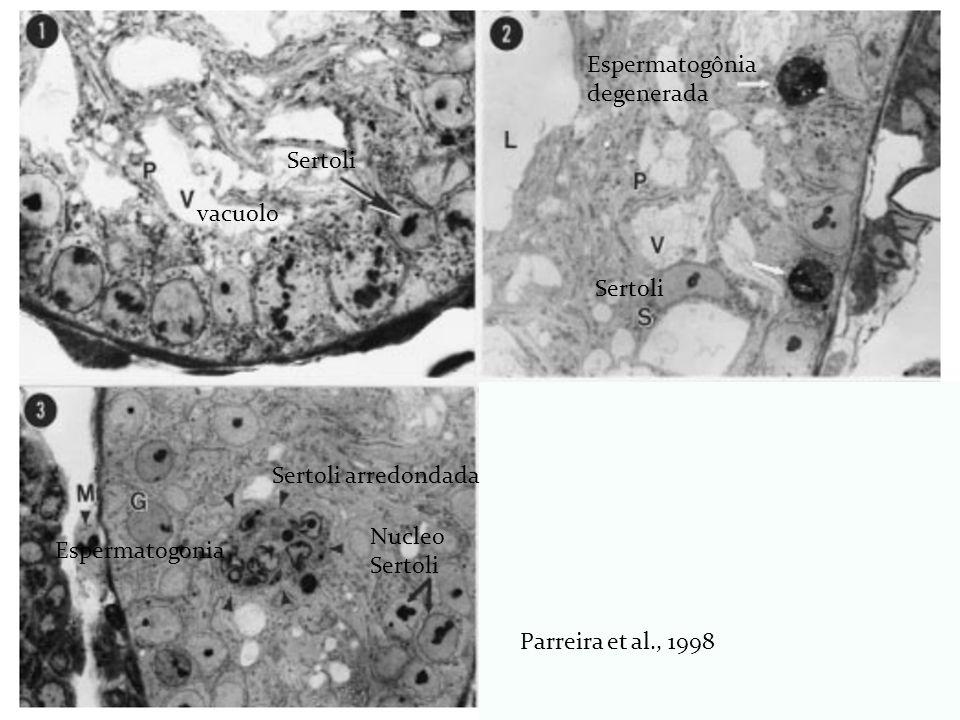 vacuolo Sertoli Espermatogônia degenerada Nucleo Sertoli Espermatogonia Sertoli arredondada Parreira et al., 1998