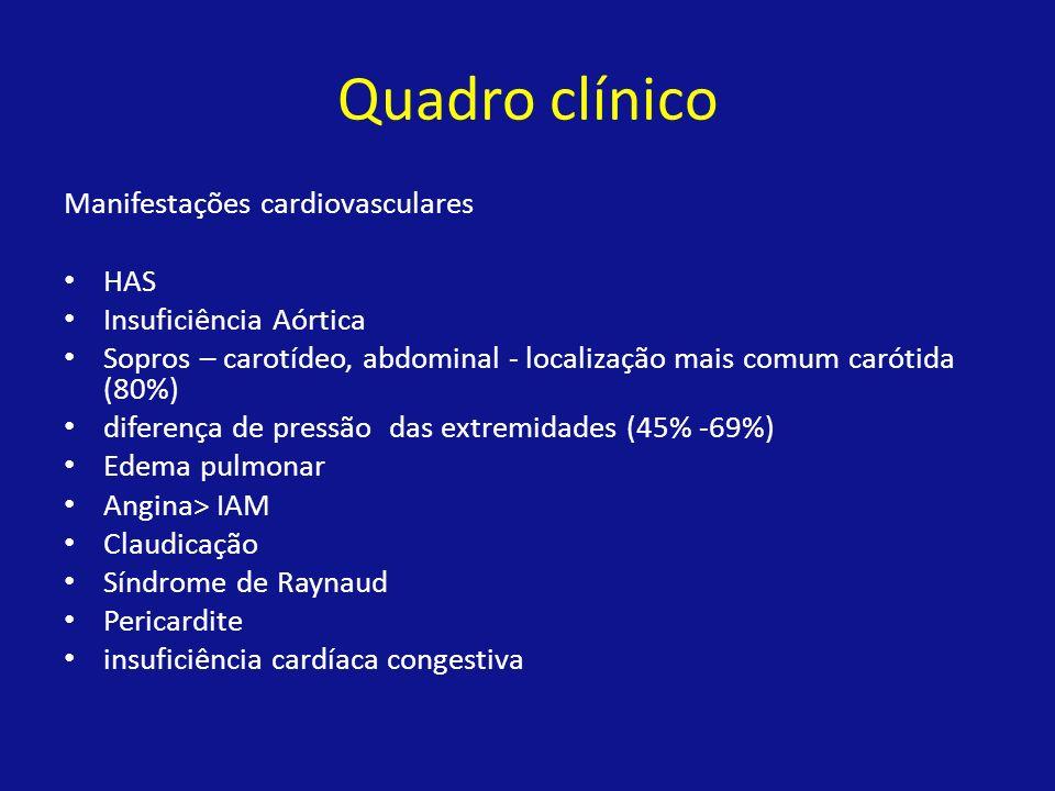 Quadro clínico Manifestações cardiovasculares HAS Insuficiência Aórtica Sopros – carotídeo, abdominal - localização mais comum carótida (80%) diferenç
