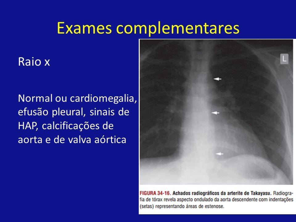 Exames complementares Raio x Normal ou cardiomegalia, efusão pleural, sinais de HAP, calcificações de aorta e de valva aórtica