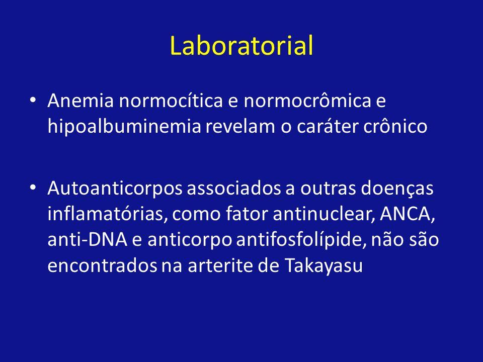 Laboratorial Anemia normocítica e normocrômica e hipoalbuminemia revelam o caráter crônico Autoanticorpos associados a outras doenças inflamatórias, c