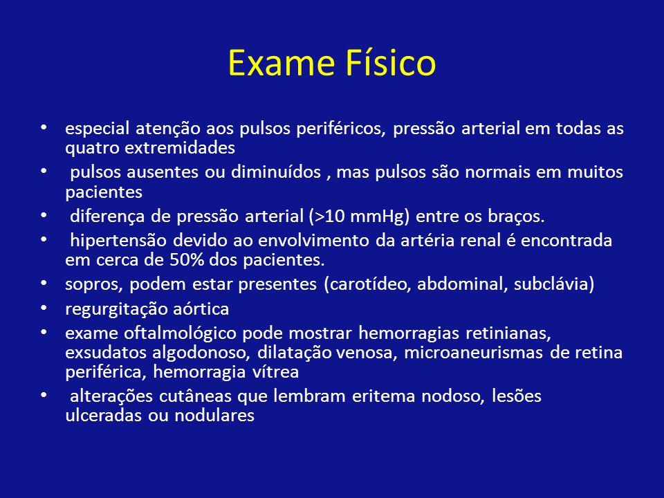 Exame Físico especial atenção aos pulsos periféricos, pressão arterial em todas as quatro extremidades pulsos ausentes ou diminuídos, mas pulsos são n