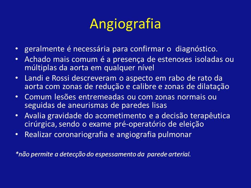 Angiografia geralmente é necessária para confirmar o diagnóstico. Achado mais comum é a presença de estenoses isoladas ou múltiplas da aorta em qualqu