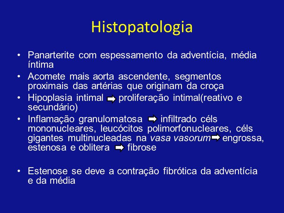 Laboratorial Anemia normocítica e normocrômica e hipoalbuminemia revelam o caráter crônico Autoanticorpos associados a outras doenças inflamatórias, como fator antinuclear, ANCA, anti-DNA e anticorpo antifosfolípide, não são encontrados na arterite de Takayasu