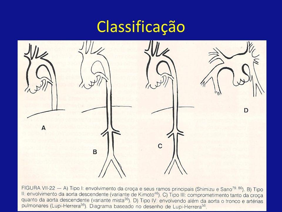 Angioplastia Melhor forma de tratamento intervencionista mantém-se indefinido.