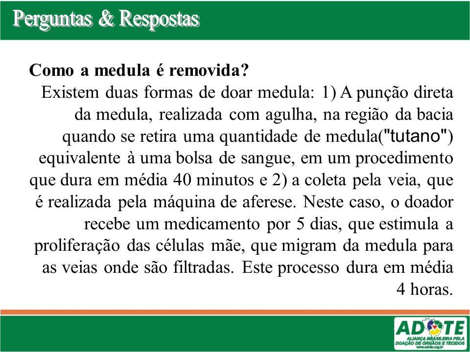 Como a medula é removida? Existem duas formas de doar medula: 1) A punção direta da medula, realizada com agulha, na região da bacia quando se retira