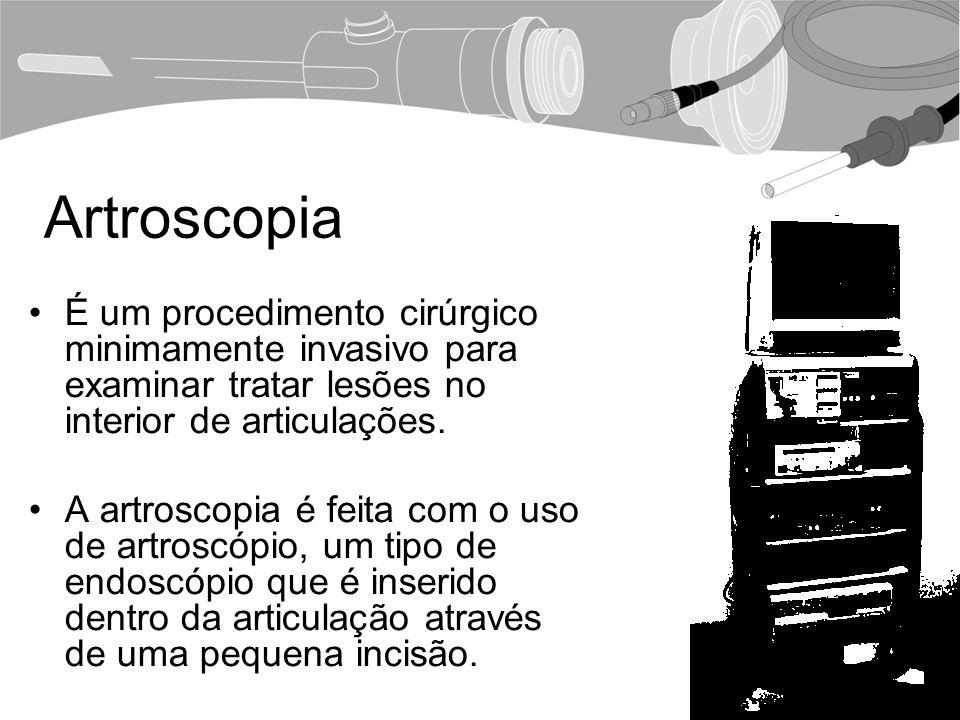 Artroscopia É um procedimento cirúrgico minimamente invasivo para examinar tratar lesões no interior de articulações.
