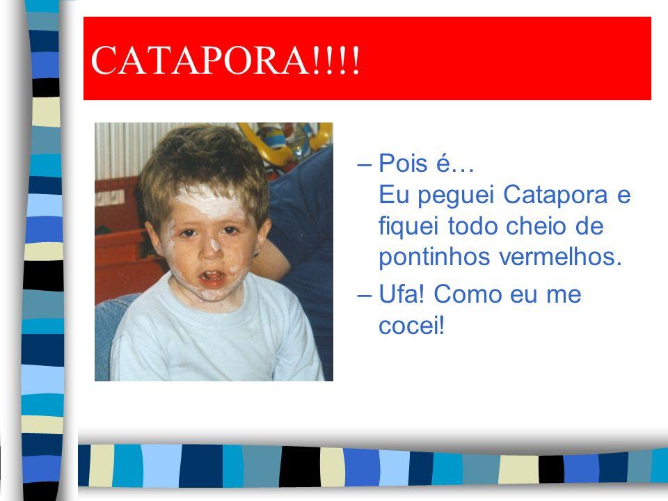 CATAPORA!!!.–Pois é… Eu peguei Catapora e fiquei todo cheio de pontinhos vermelhos.
