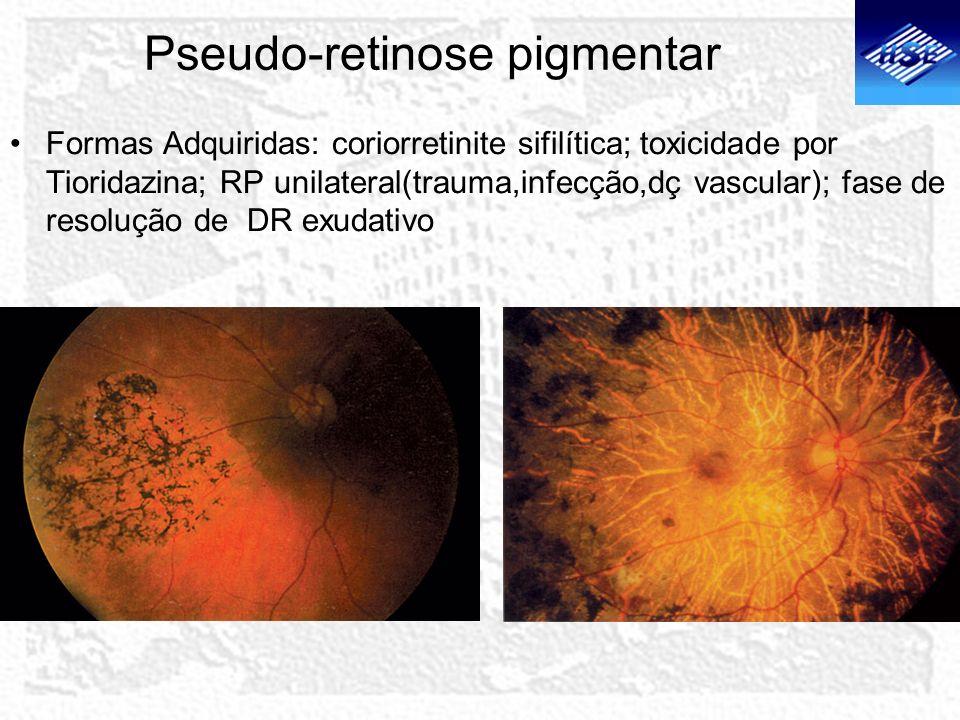 Pseudo-retinose pigmentar Formas Adquiridas: coriorretinite sifilítica; toxicidade por Tioridazina; RP unilateral(trauma,infecção,dç vascular); fase d