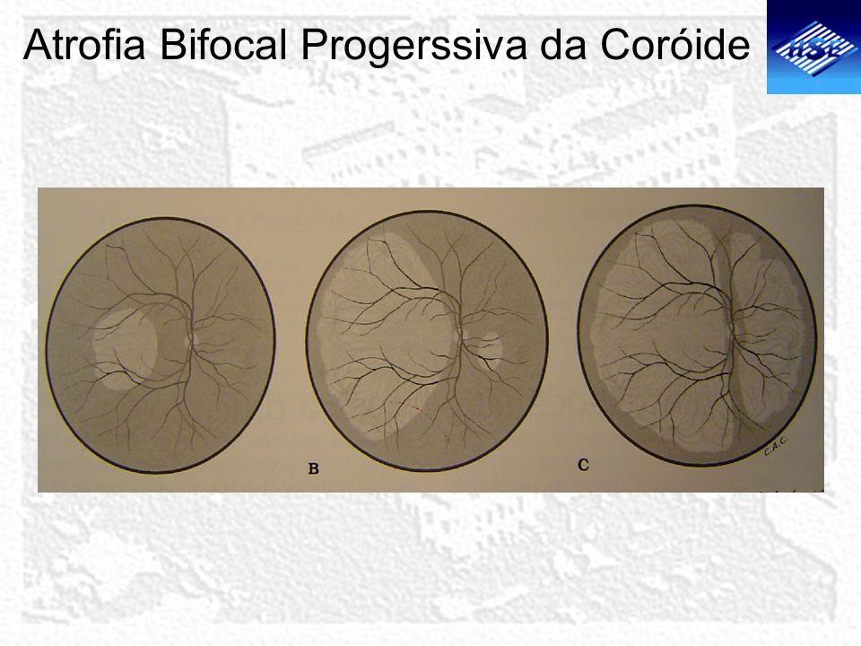 Atrofia Bifocal Progerssiva da Coróide