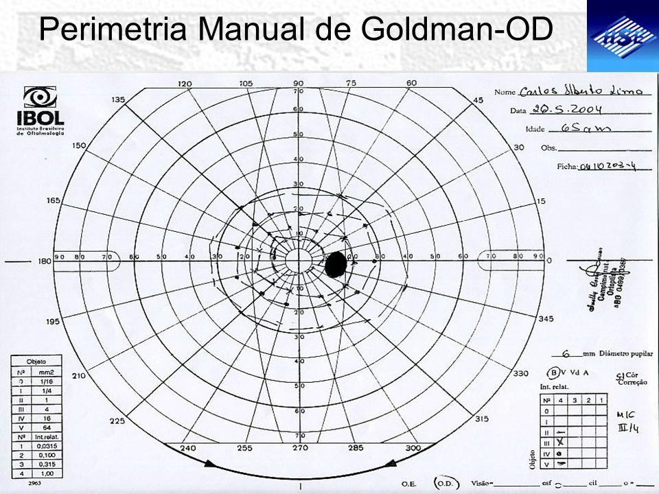 Perimetria Manual de Goldman-OD