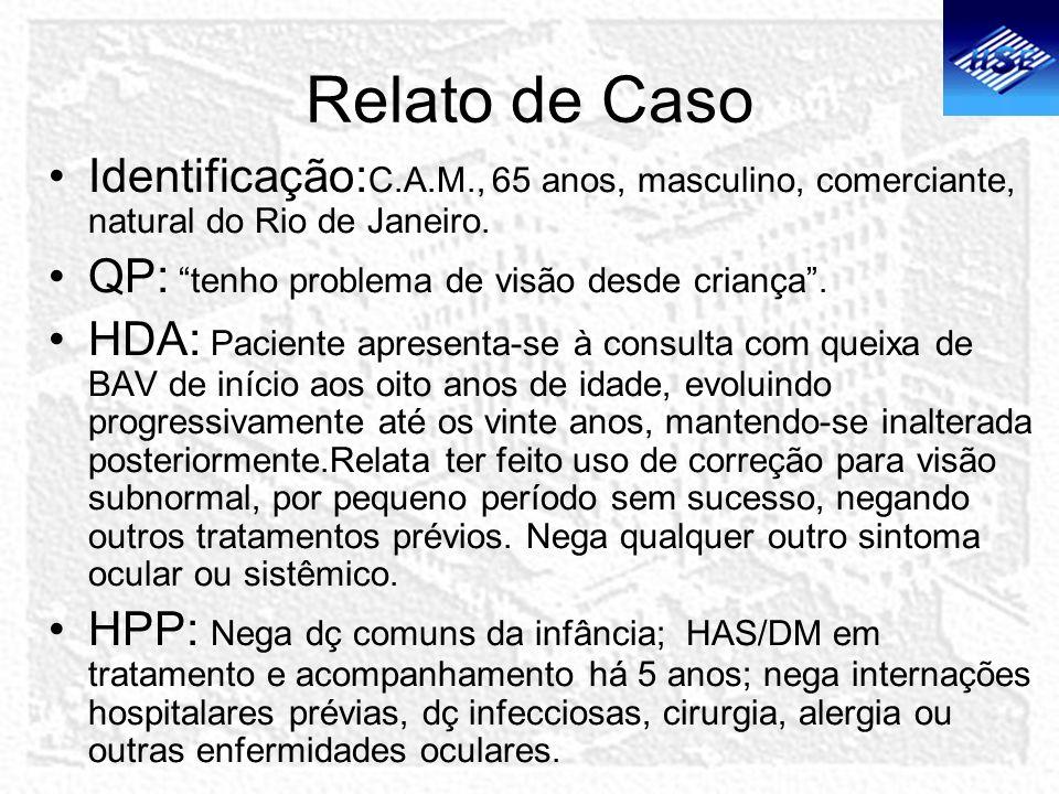 Relato de Caso Identificação: C.A.M., 65 anos, masculino, comerciante, natural do Rio de Janeiro. QP: tenho problema de visão desde criança. HDA: Paci
