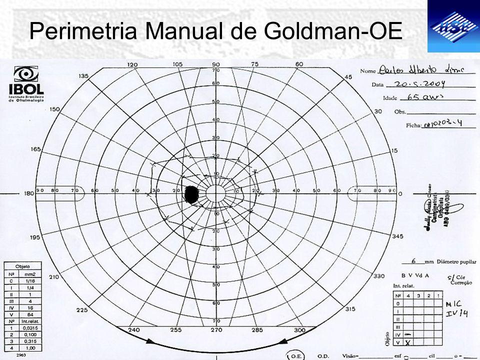 Perimetria Manual de Goldman-OE
