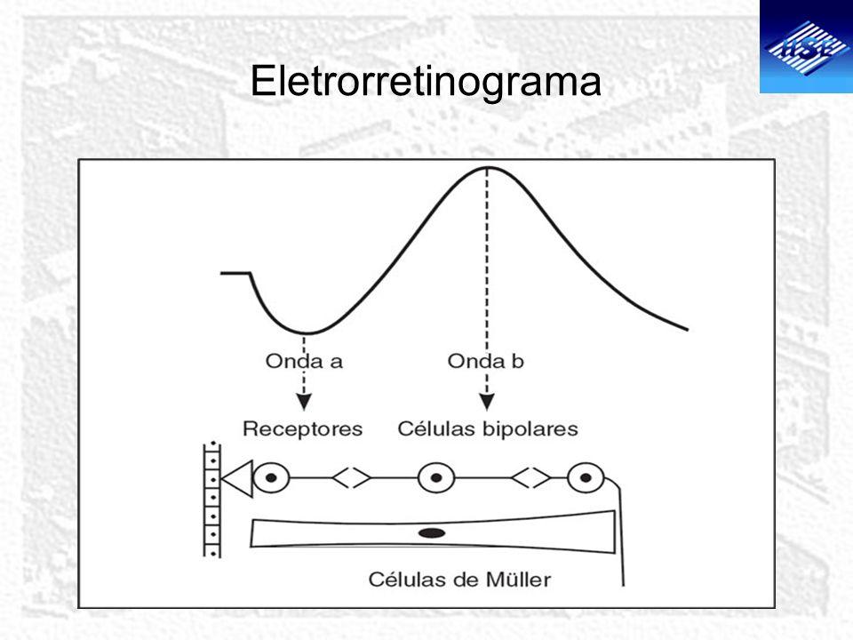 Eletrorretinograma