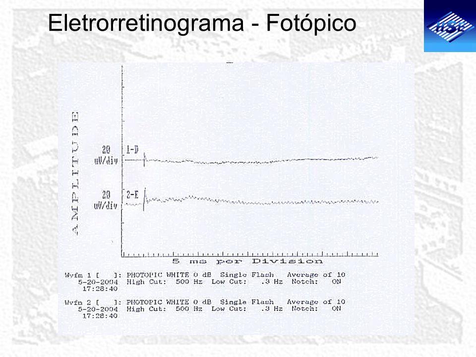 Eletrorretinograma - Fotópico