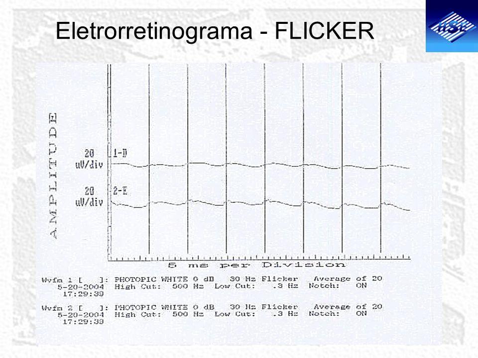 Eletrorretinograma - FLICKER
