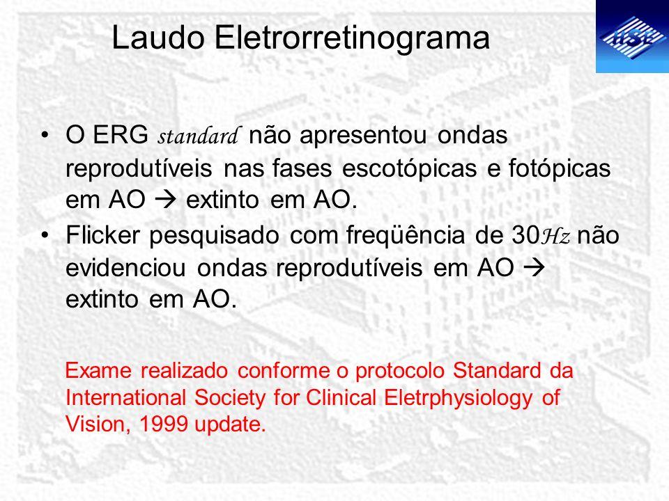 Laudo Eletrorretinograma O ERG standard não apresentou ondas reprodutíveis nas fases escotópicas e fotópicas em AO extinto em AO. Flicker pesquisado c