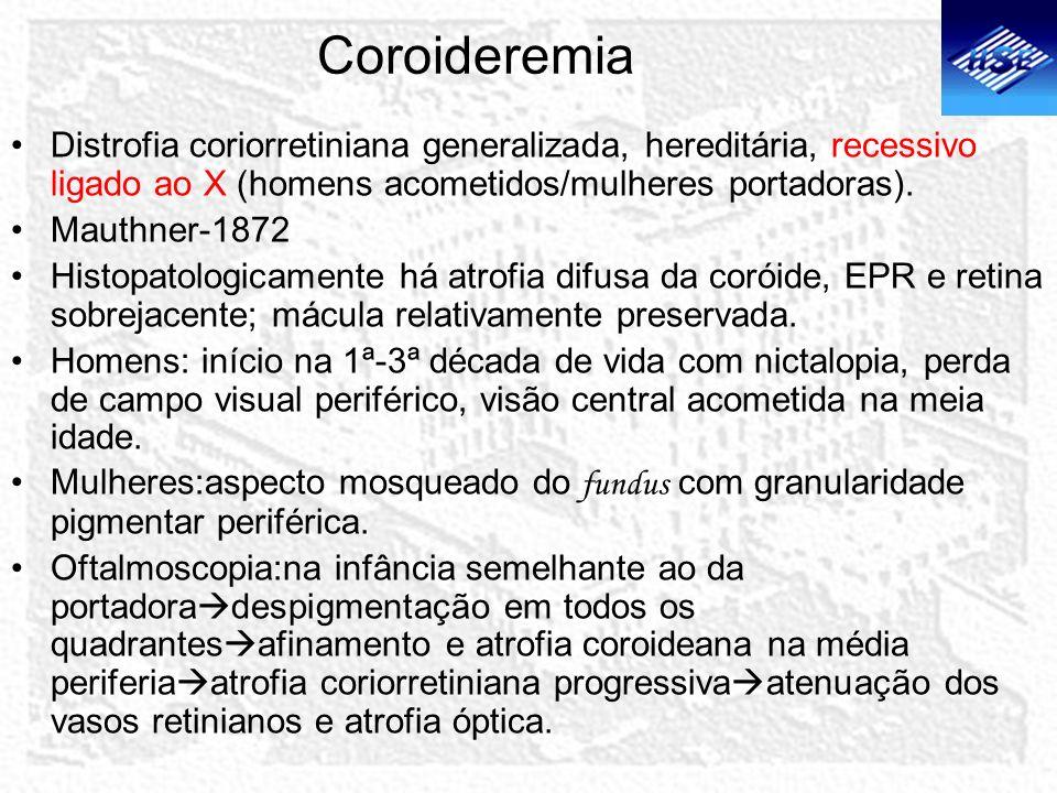 Coroideremia Distrofia coriorretiniana generalizada, hereditária, recessivo ligado ao X (homens acometidos/mulheres portadoras). Mauthner-1872 Histopa
