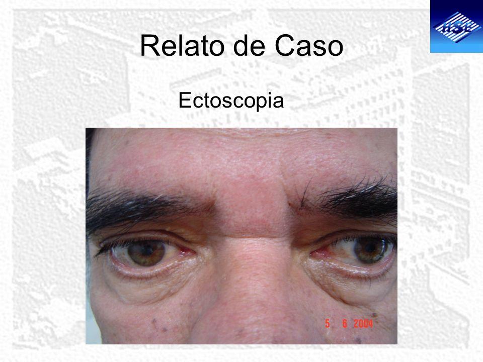 Relato de Caso >Biomicroscopia: AO- Ausência de alterações dos cílios, de inflamação ou infecção das pálpebras, conjuntiva, esclera ou córnea.