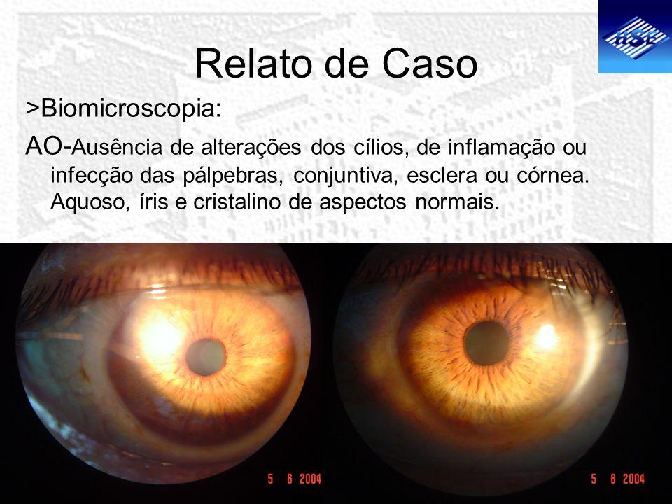 Relato de Caso >Biomicroscopia: AO- Ausência de alterações dos cílios, de inflamação ou infecção das pálpebras, conjuntiva, esclera ou córnea. Aquoso,
