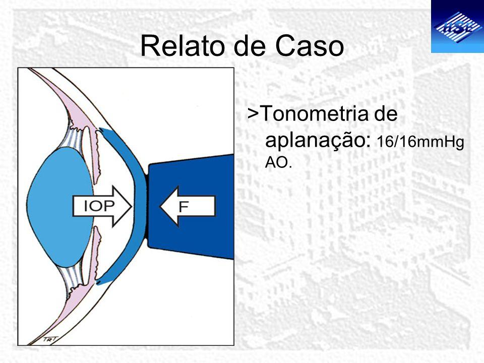 Relato de Caso >Tonometria de aplanação: 16/16mmHg AO.