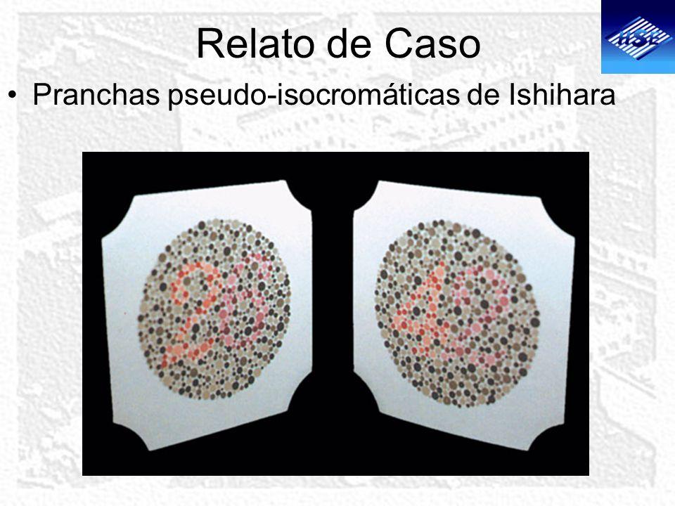 Relato de Caso >Fundoscopia sob midríase AO: papilas ópticas de forma e coloração normais.
